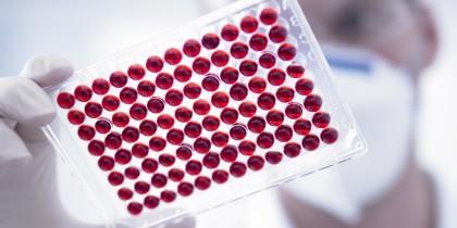 тест крови