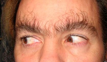 волосатые брови