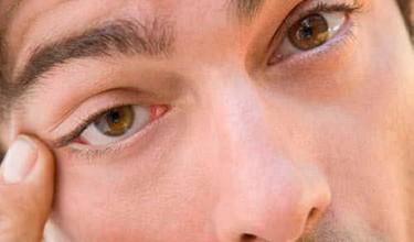 Если дёргается глаз